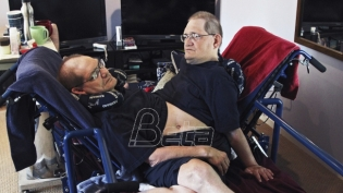 Sijamski blizanci s najdužim životnim vekom umrli u 69. godini