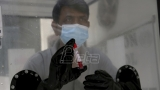 SZO:  Hidroksihlorokin ima male efekte na smanjenje smrtnosti od kovida-19